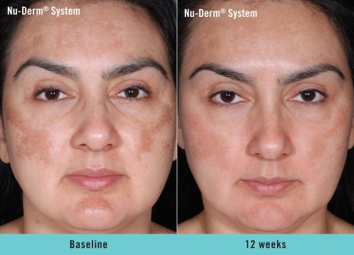Obagi Nu Derm for Melasma
